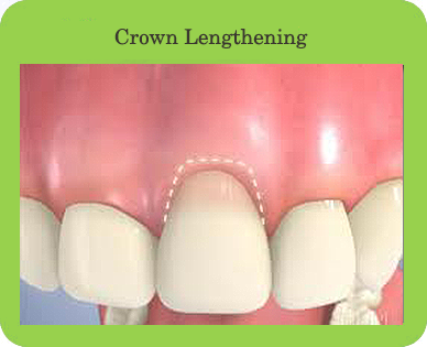 Crown Lengthening, Houston, TX