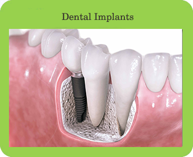 Dental Implants, Houston, TX