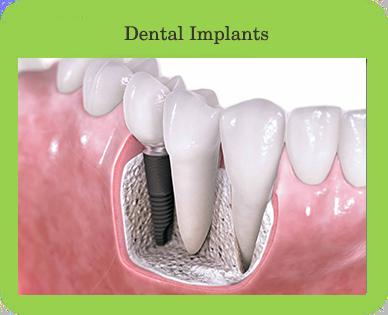 Dental Implants, Houston, TX