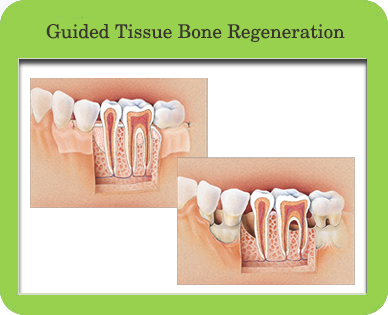 Guided Tissue Bone Regeneration, Houston, TX