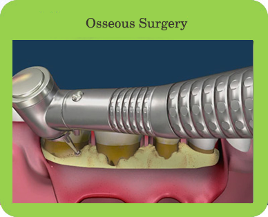 Osseous Surgery Houston, TX