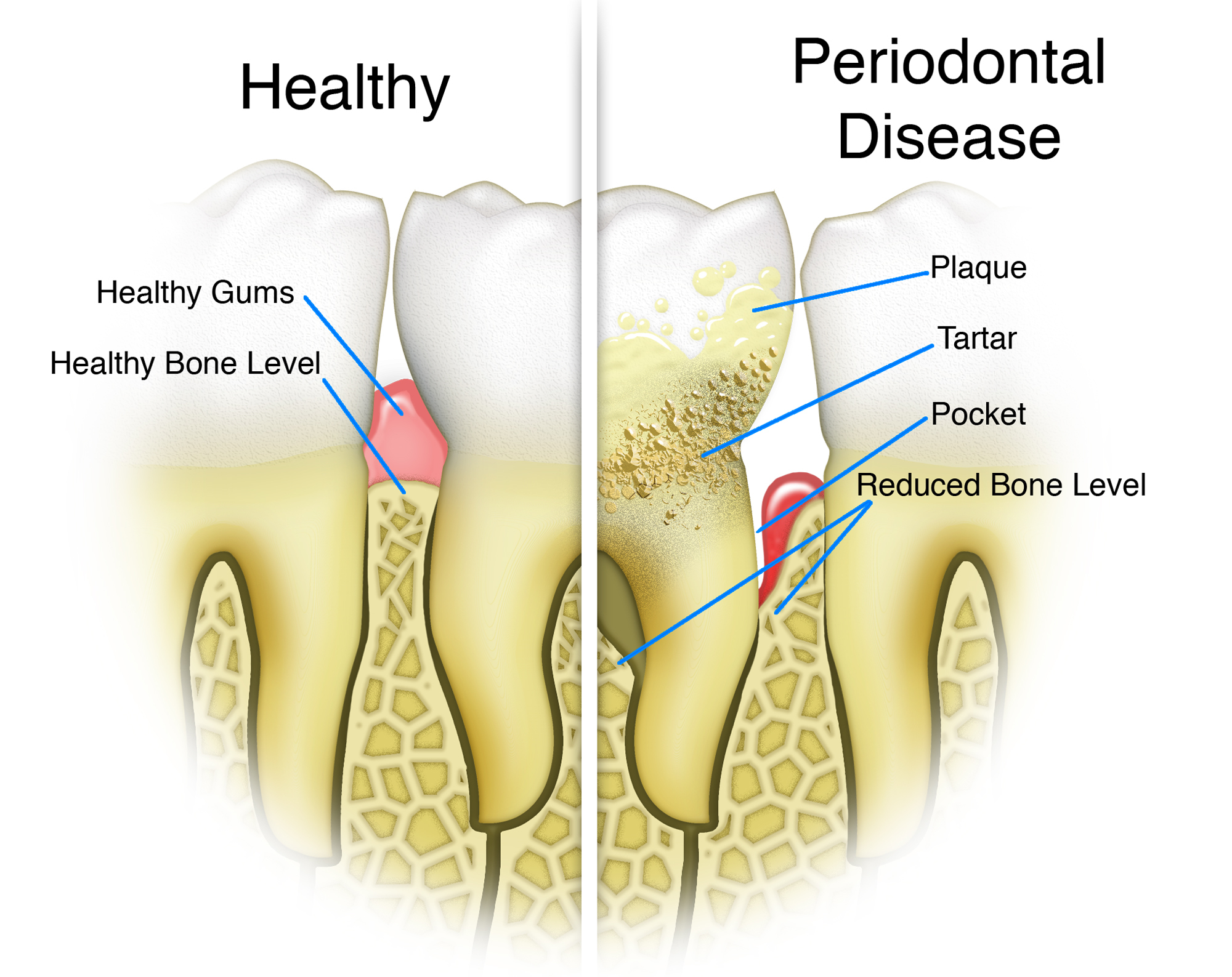 Periodontal Disease treatment at John T. Roane, DDS in Houston, TX