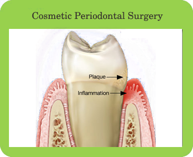 Cosmetic Periodontal Surgery, Houston, TX